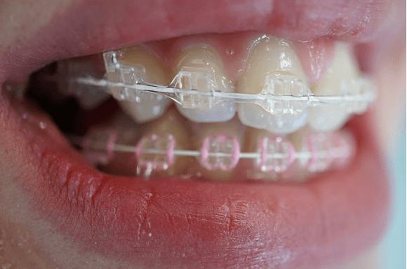 ortodontie-10