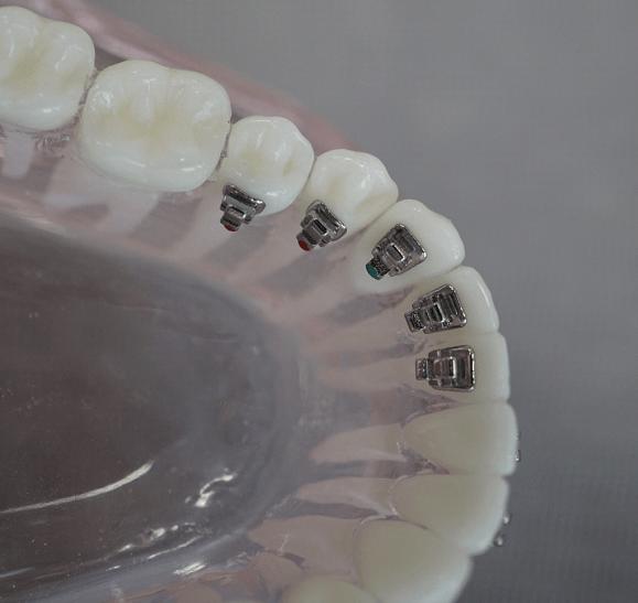 ortodontie-12