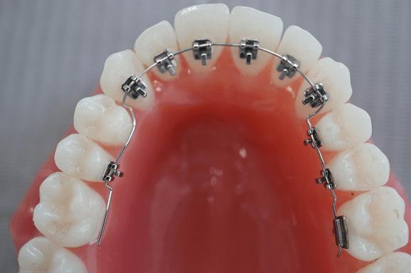 ortodontie-13