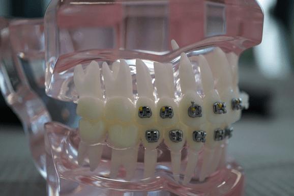 ortodontie-4