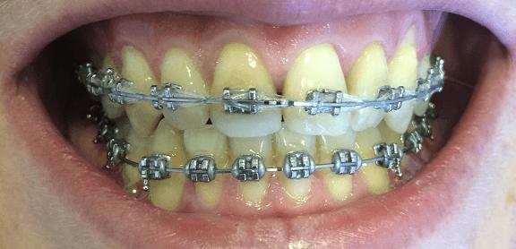 ortodontie-6