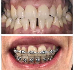 Aparat metalic-etapa de tratament